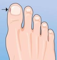how to cut toenails straight